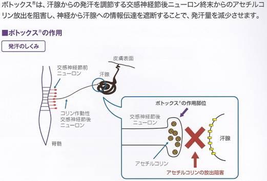 ボトックス注射の原理