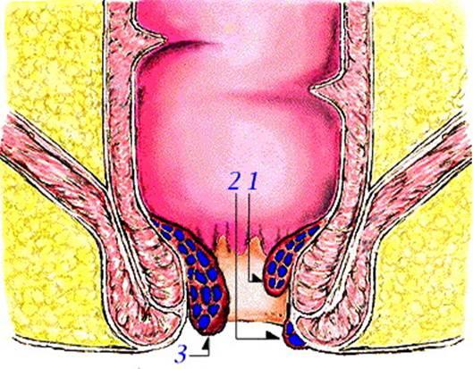 肛門の解剖2