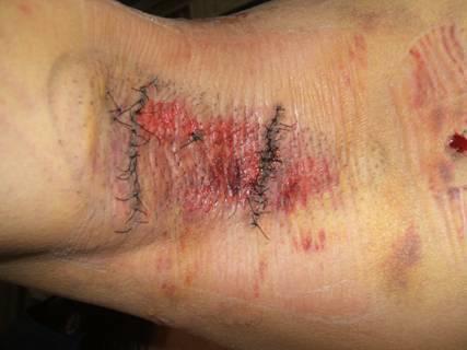 術後5日目、皮膚が赤く糜爛状となっている。