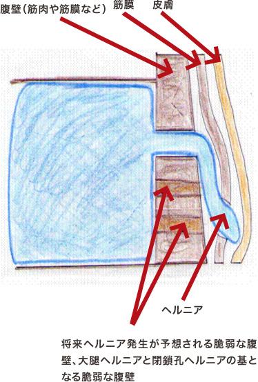 鼠径ヘルニア模式図