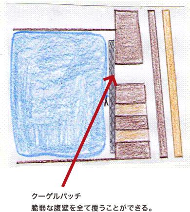 クーゲル法模式図