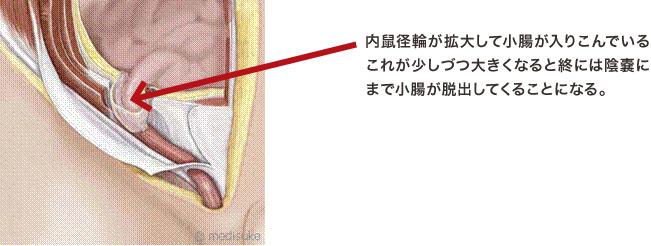 外鼠径ヘルニア 内鼠径輪から小腸が外へ向かって飛び出している。