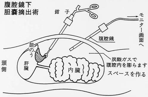 手術模式図
