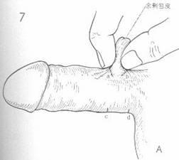 陰茎根部環状切除