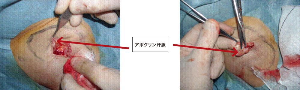 手術写真1