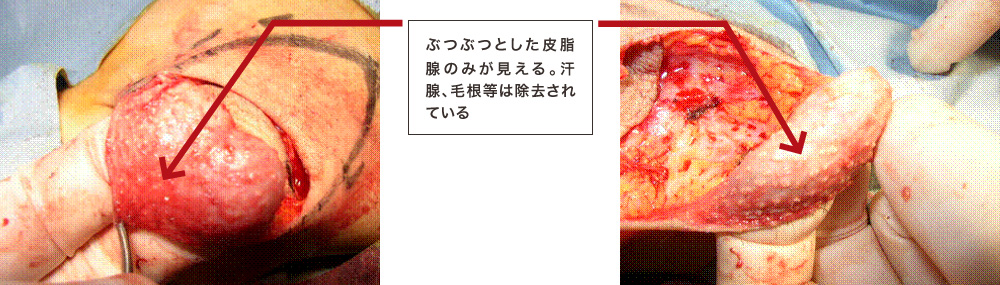 手術写真6