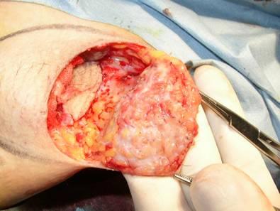 腋窩の皮膚を反転しアポクリン汗腺、毛根、脂肪織が見えている。