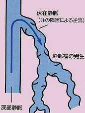 静脈瘤の場合の血液の逆流